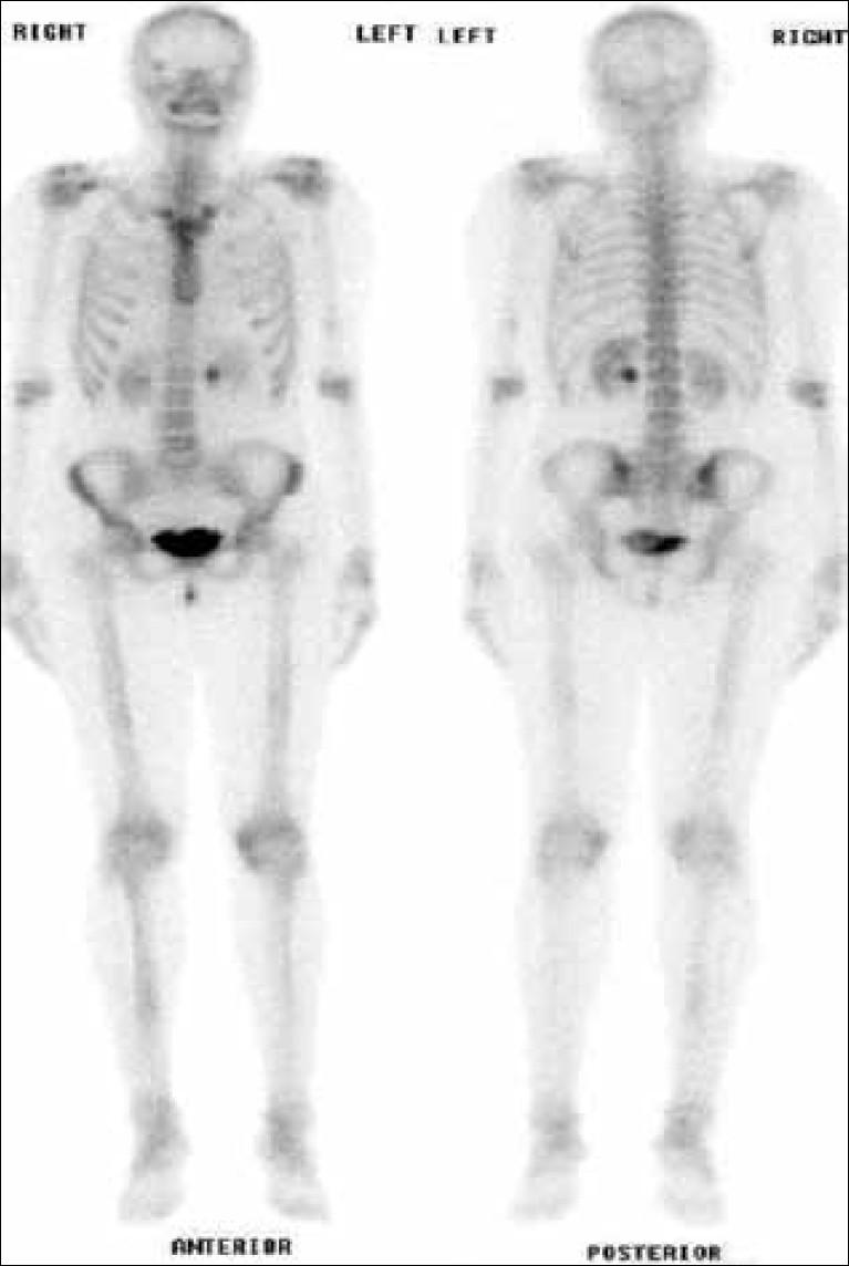 Bone Scan Cpt Code 78306