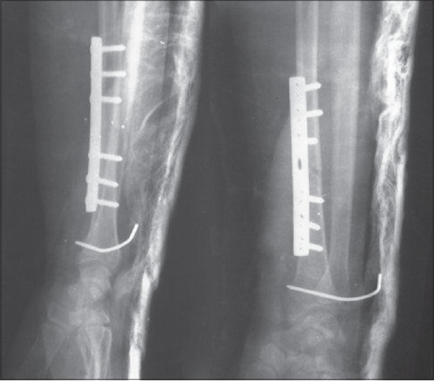 Early rehabilitation in unstable bilateral Galeazzi ...