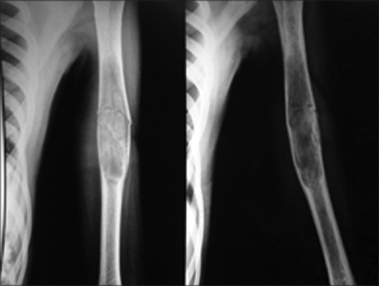 Simple bone cyst with pathological fracture of humerus treated with ...