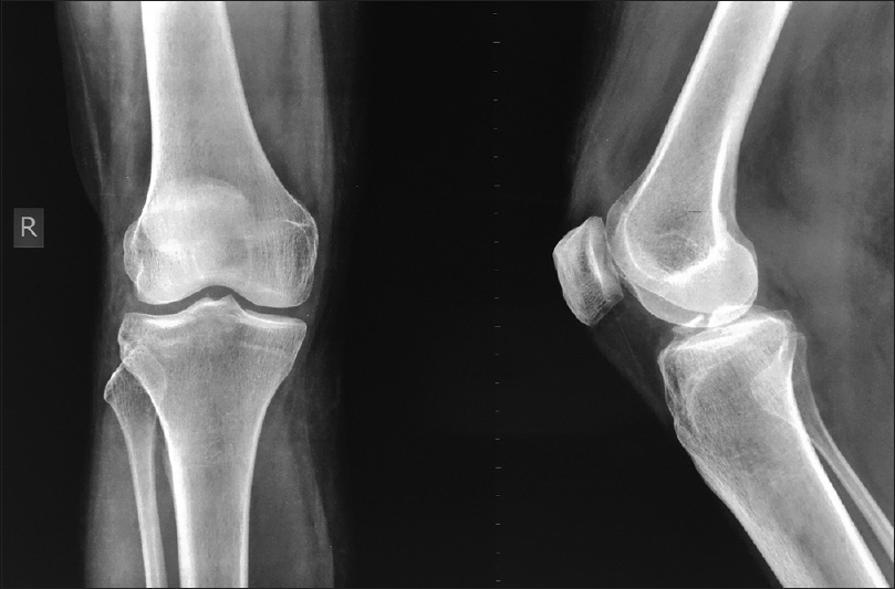 Fixation of anterior cruciate ligament avulsion fractures